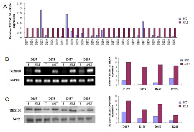 TMEM100 is frequently down-regulated in HCC tissues.