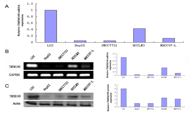TMEM100 is also frequently down-regulated in HCC cell lines.