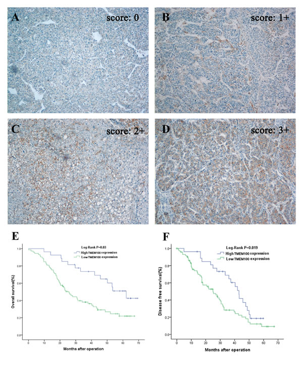 Immunohistochemistry of TMEM100 expression in HCC tissues and its prognostic implication.