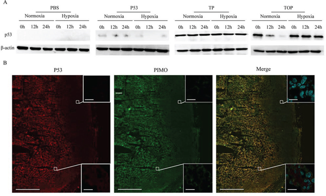 Cell permeability and selective stability of p53 fusion proteins in the MDA-MB-157 cell line and in tumor tissue.