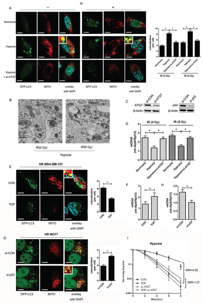 TOP inhibits hypoxia-induced protective mitophagy in breast cancer cells exposed to irradiation.