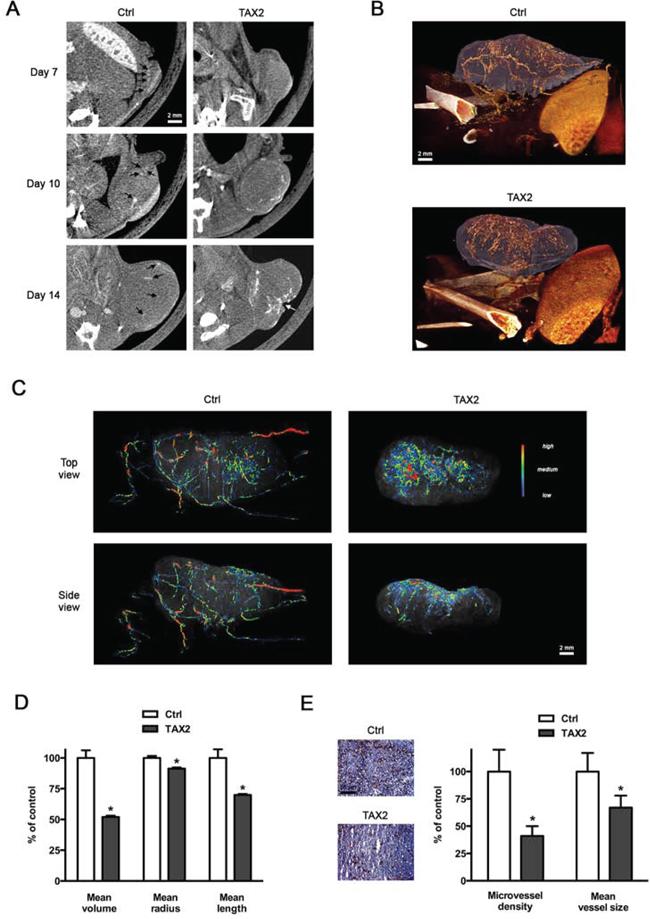 TAX2 disturbs tumor angiogenesis.