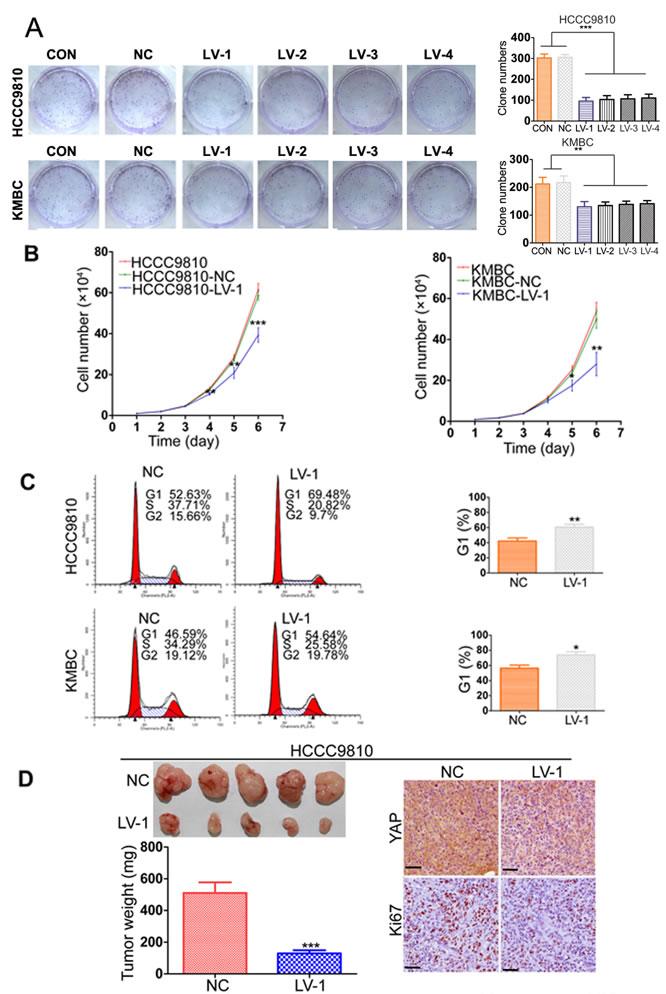 YAP knockdown inhibits CCA tumor growth both