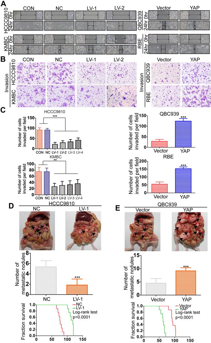 YAP promotes CCA metastasis both