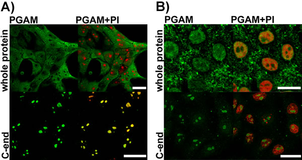 Detection of PGAM in KLN-205 cells with antibodies directed to whole PGAM protein or to C-terminal peptide of PGAM.
