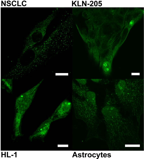 Localization of PGAM with the use of antibody against the C-terminal peptide in neoplastically transformed (NSCLC, KLN-205) and non-malignant (HL-1 cardiomiocytes, astrocytes) cells cultured in serum-free media.