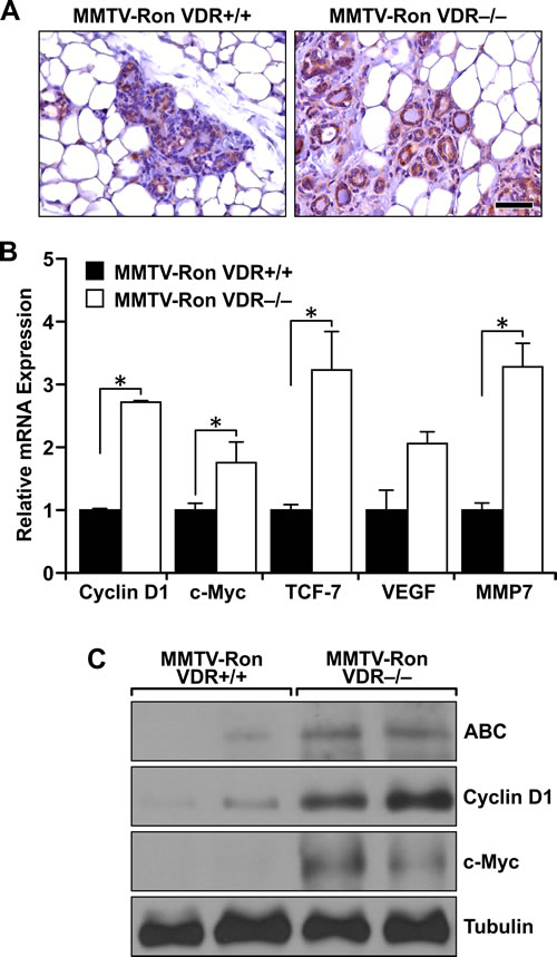 Enhanced downstream β-catenin signaling in Ron-mediated mammary tumorigenesis with VDR ablation.