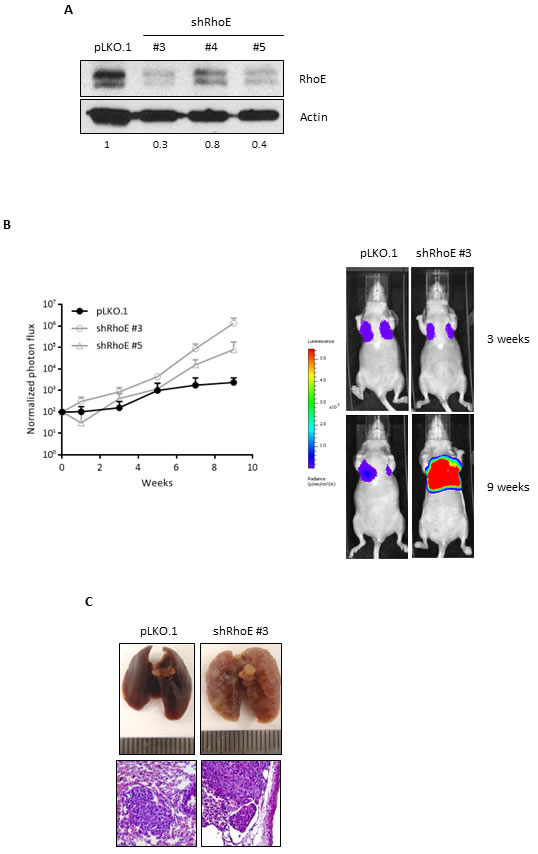 RhoE expression reduces metastatic potential of MDA-MB-231 cells.
