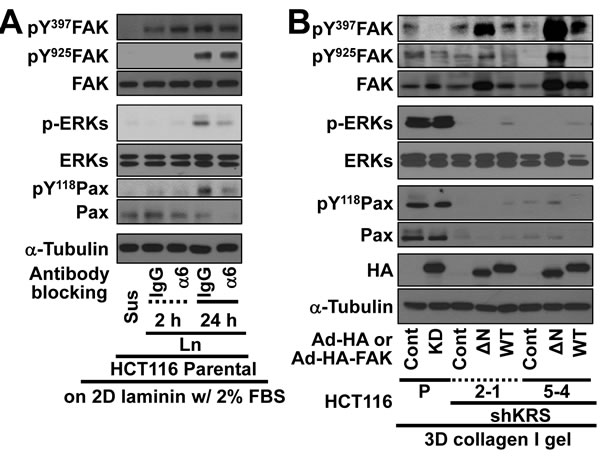 Blockade of dissemination of KRS-suppressed cells was relieved by ERK1/2 and/or paxillin expression.