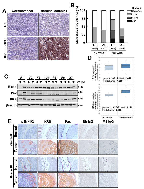 Relevance of KRS in tumor metastasis in KRS-/+ PyVT mouse and colon cancer patient tissues.