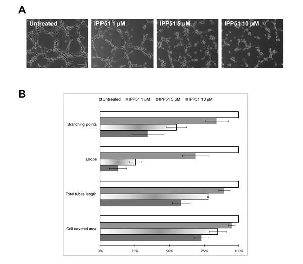 IPP51 inhibits capillary-like tubes formation.