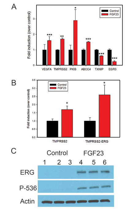 FGF23 alters expression of genes implicated in tumor progression.