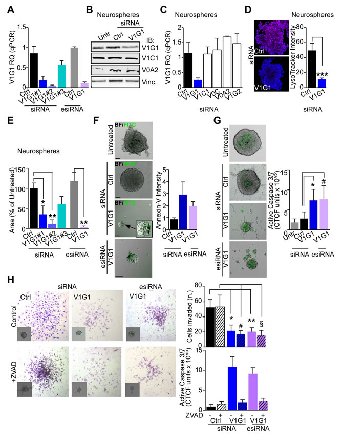 V-ATPase subunit G1 is central for GBM stem cell viability and invasive potential.