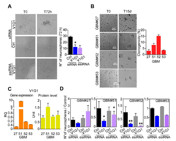 V-ATPase G1 levels are associated to clonogenicity of GBM neurospheres.