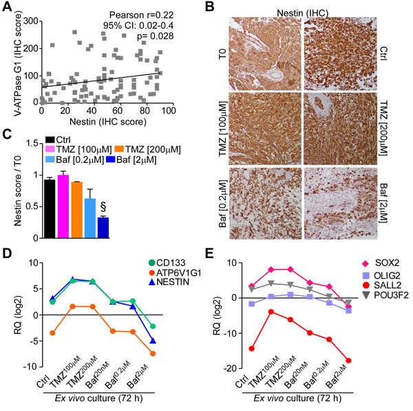 Bafilomycin A1 reduces stem cell factors expression in GBM organ cultures.