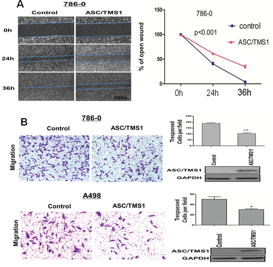ASC/TMS1 modulates RCC cell migration and invasion.