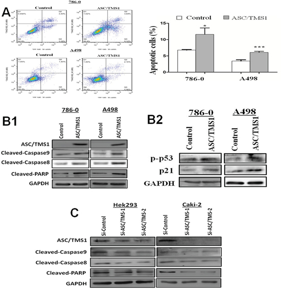 ASC/TMS1 induced apoptosis of renal cancer cells.