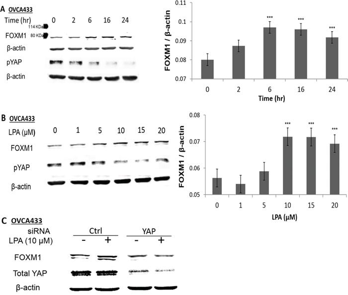 LPA induced FOXM1 up-regulation in EOC cells.