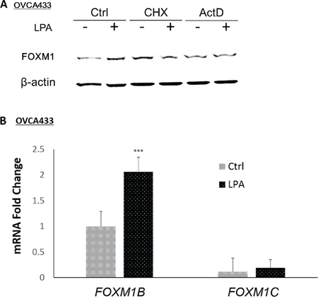 LPA-transcriptionally regulated FOXM1B in OVCA433 cells.