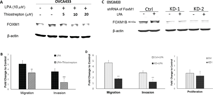 FOXM1 was functionally involved in cell proliferation, migration, and invasion in EOC cells.