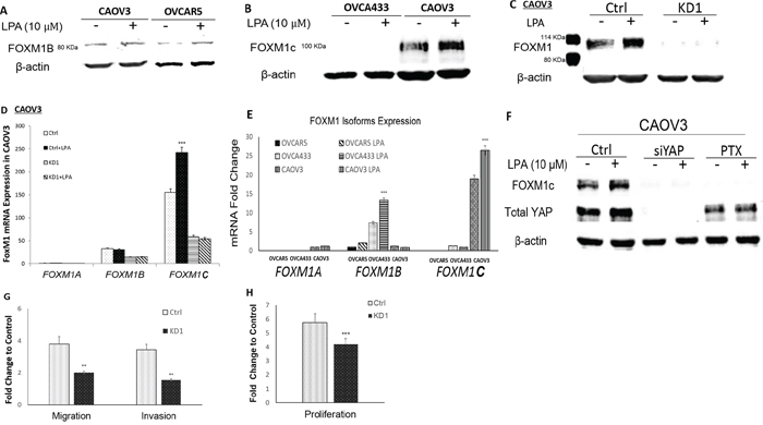 LPA-induced FOXM1 in other EOC cell lines and FOXM1C was the dominant form in CAOV3 cells.