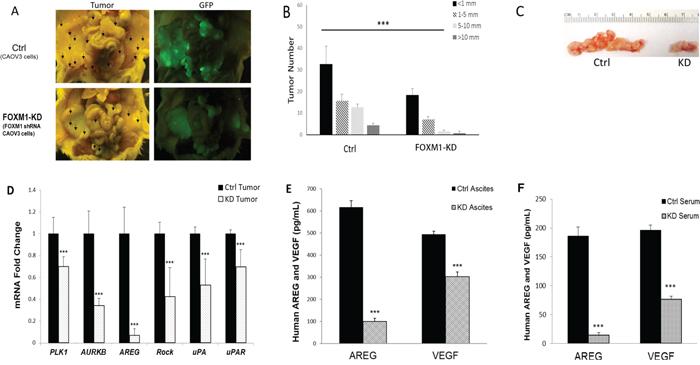 FOXM1 was functionally involved in tumorigenesis in vivo.