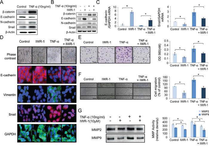 IWR-1 effect on TNF-α-induced EMT, cell invasion, migration and MMP activities in HCT116 cells.