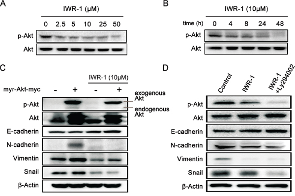 IWR-1 effects on EMT according to the Akt expression status.