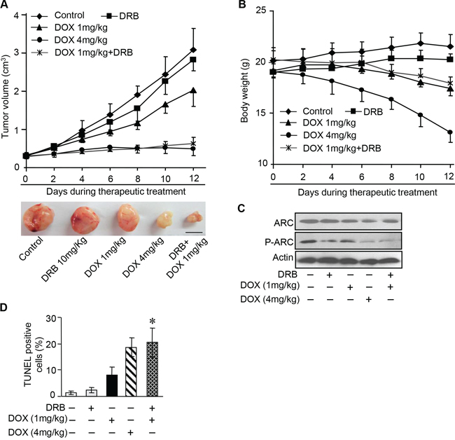 DOX combines with CK2 inhibitor enhance chemotherapeutic effect in vivo.