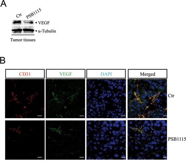 A2B receptor blockade with PSB1115 inhibits tumor angiogenesis.