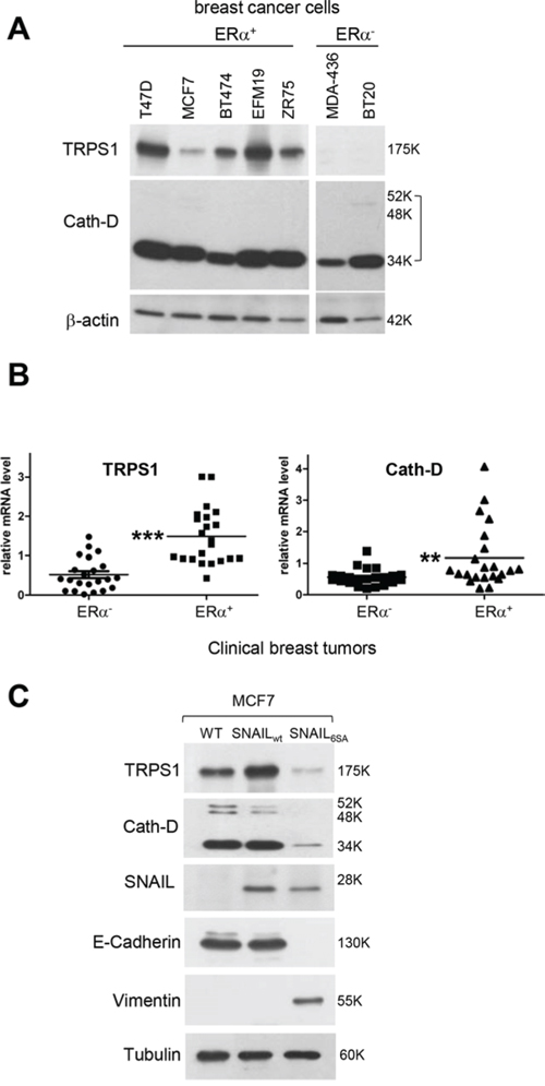 The ER status and EMT influence Cath-D and TRPS1 expression in human BCC lines and breast tumors.
