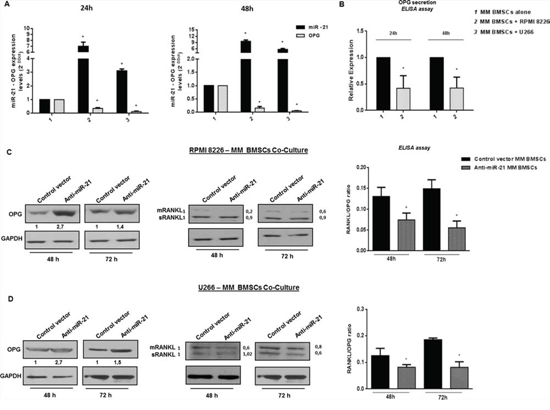 miR-21 is upregulated in primary patient BMSCs adherent to MM cells and its constitutive inhibition restores RANKL/OPG ratio.