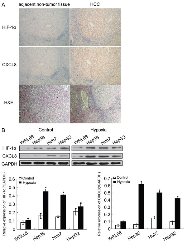 HIF-1α expression is increased in HCC tissues.