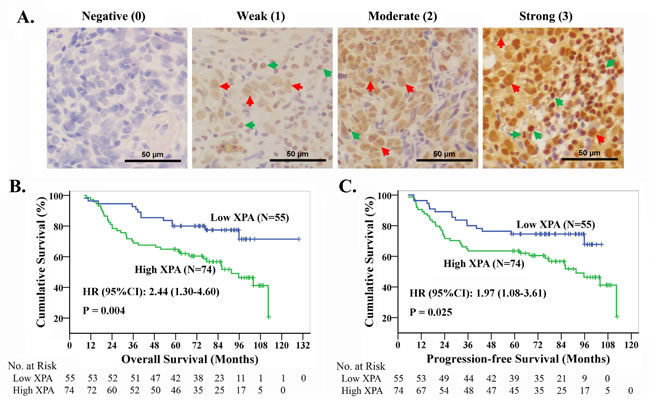 The high expression of XPA correlates with the prognosis in NPC patients treated with platinum-based chemoradiotherapy.