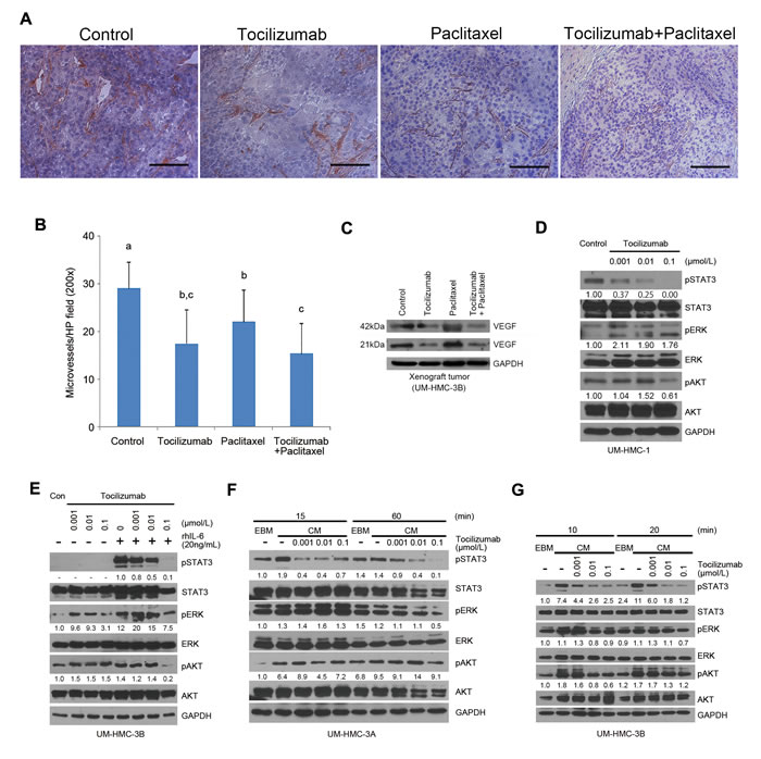 Tocilizumab inhibits tumor microvessel density and STAT3 activity.