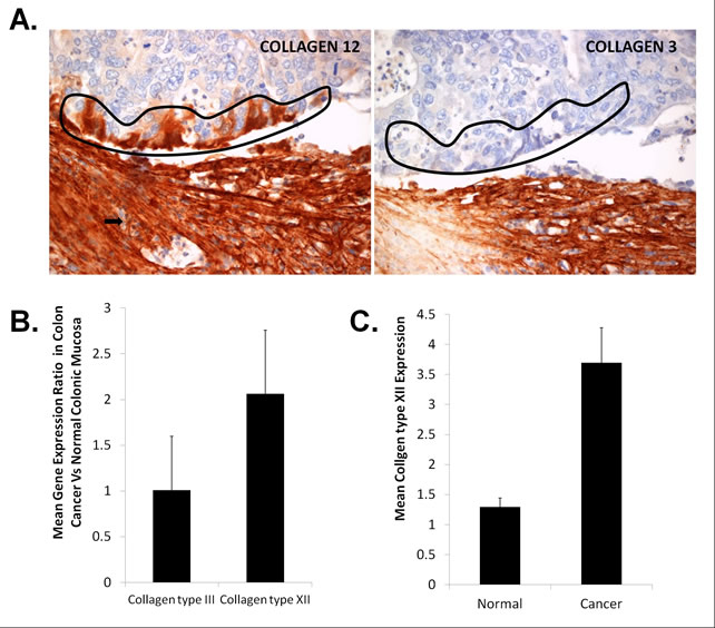 Investigation of Collagen type XII expression in colon cancer cells.