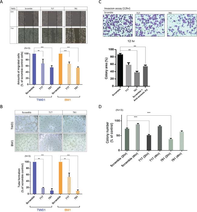 Annexin A2 (ANXA2) knockdown inhibits malignant phenotypes in vitro.