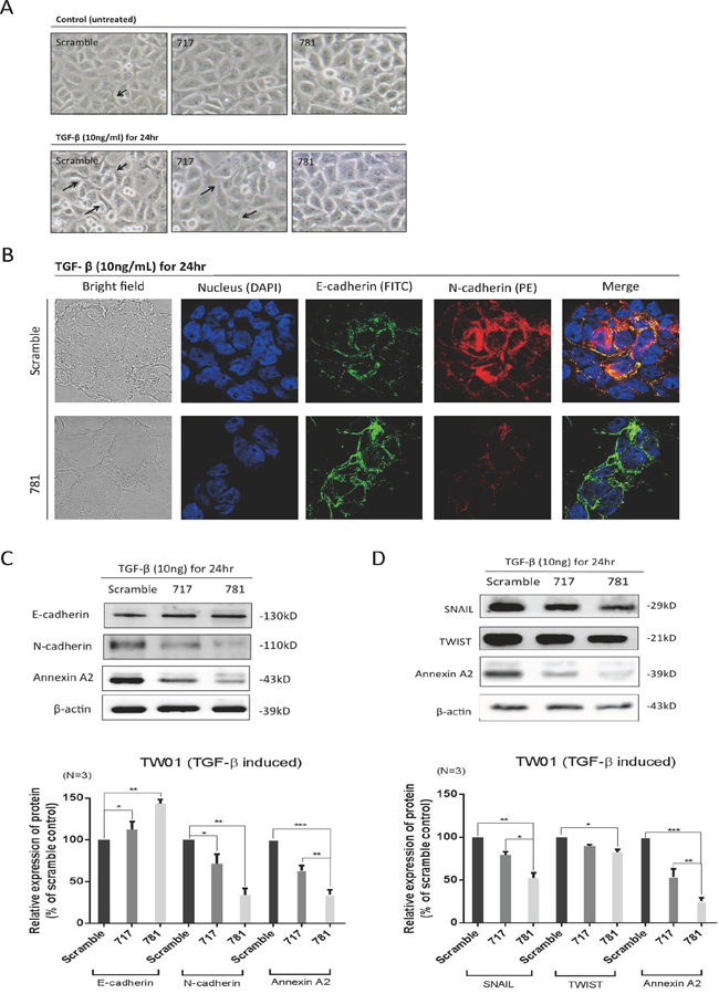 Annexin A2 (ANXA2) regulates the epithelial-mesenchymal transition (EMT) in nasopharyngeal carcinoma (NPC) cells.