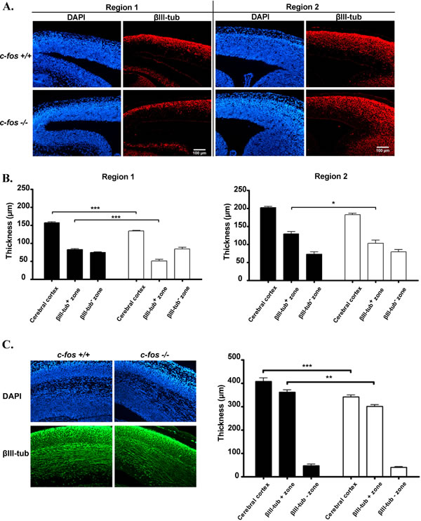 Neuronal differentiation is decreased in