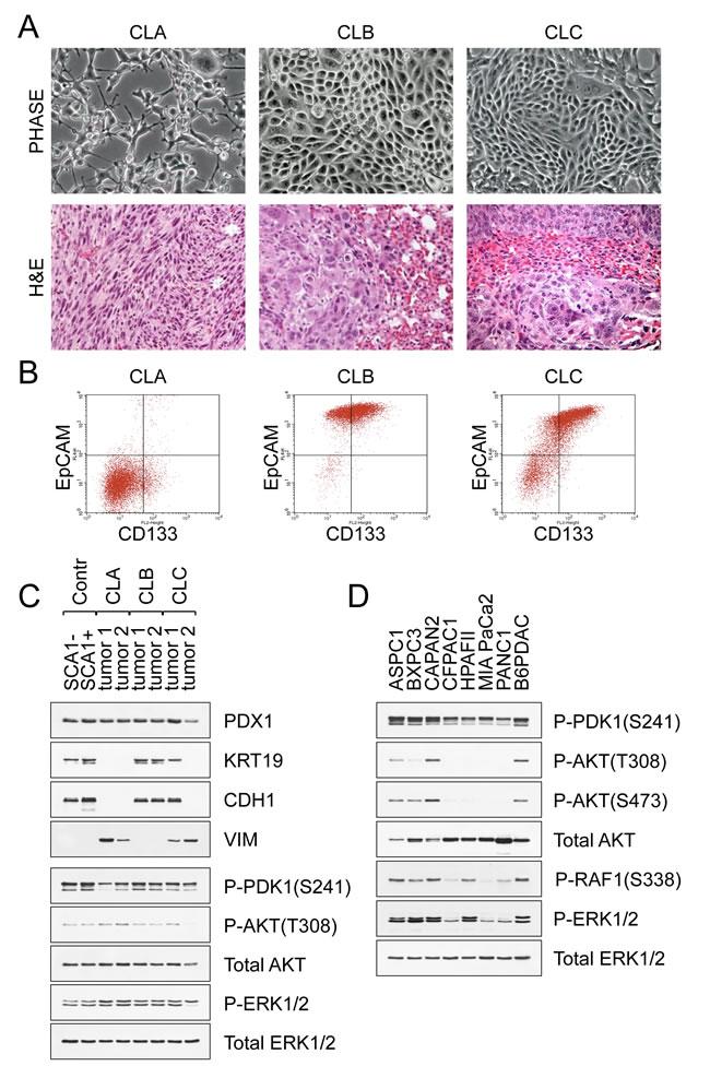 Pancreatic cancer metastases display morphological and phenotypic heterogeneity.