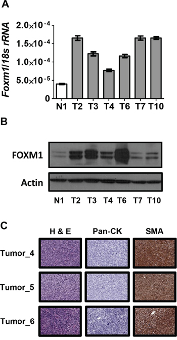 FOXM1 expression in Rb1/Trp53 knockout-driven murine ovarian cancer.
