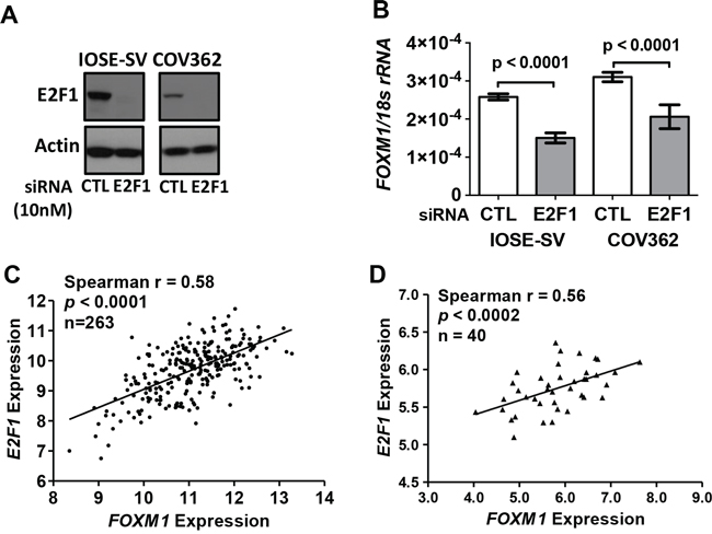 E2F1 and FOXM1 expression in IOSE-SV cells, HGSOC cells, and primary tumors.