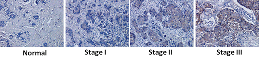 Increased expression of EpCAM in breast cancer and correlation with tumor stage and progression.