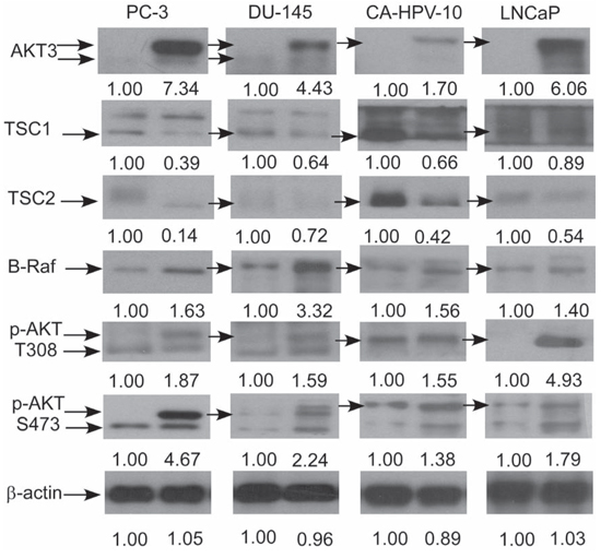 AKT3 overexpression affected protein expression of B-Raf, TSC1, TSC2, and AKT phosphorylation in PC-3, DU-145, CA-HPV-10, and LNCaP PCa cells.