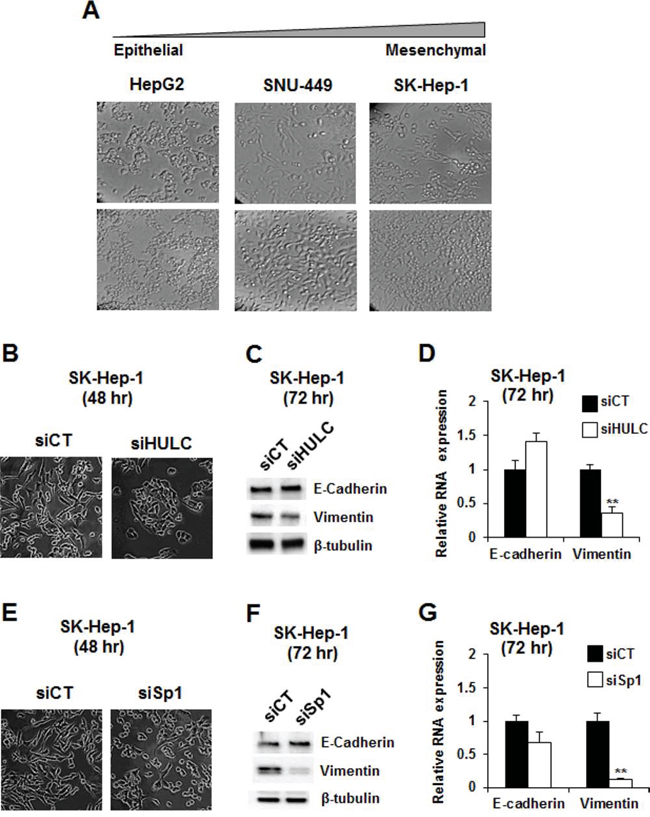 Modulation of epithelial-to-mesenchymal transition by knockdown of Sp1 and HULC.
