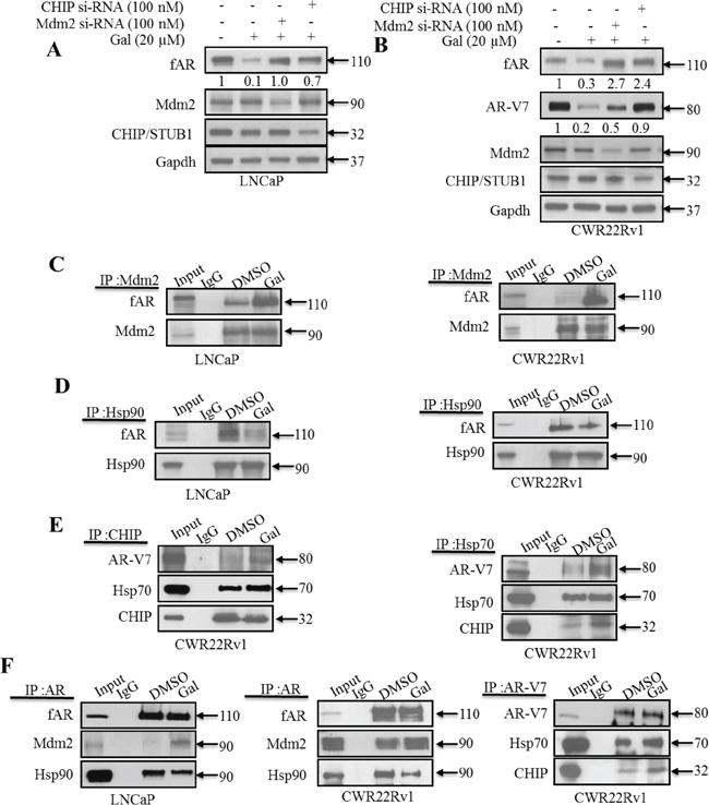 Gal enhanced AR/AR-V7 degradation implicates E3 ligase Mdm2 and CHIP.