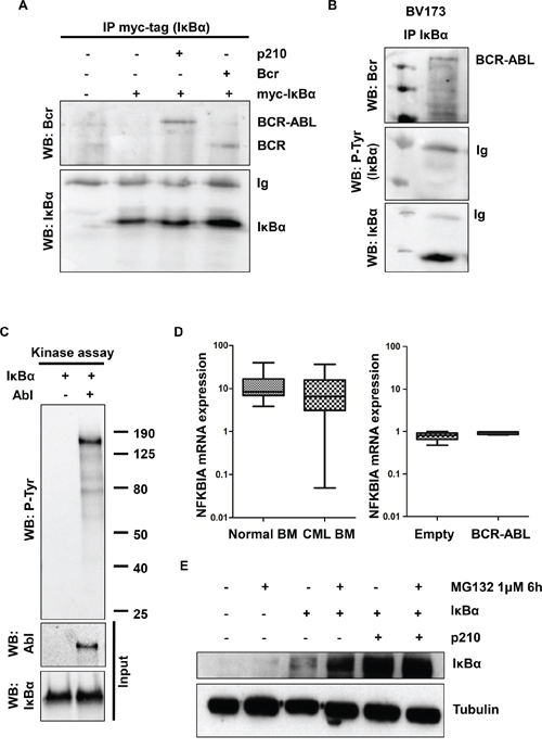 IκBα interactions and phosphorylation in BCR-ABL transfected cells.