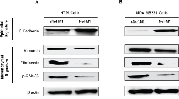 Nef-M1 peptide inhibits EMT in CRC and BC cells.