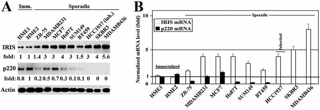 Expression of BRCA1-IRIS and BRCA1/p220 in breast cancers cell lines.