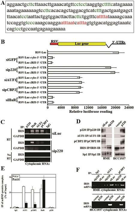 Identification and analysis of AREs motifs in BRCA1-IRIS 3`-UTR region.